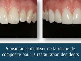 Résine de composite pour les dents