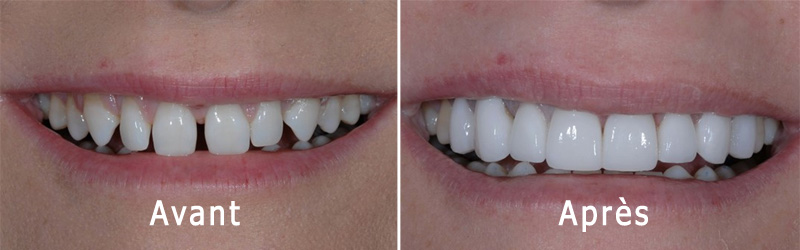 sourire-2