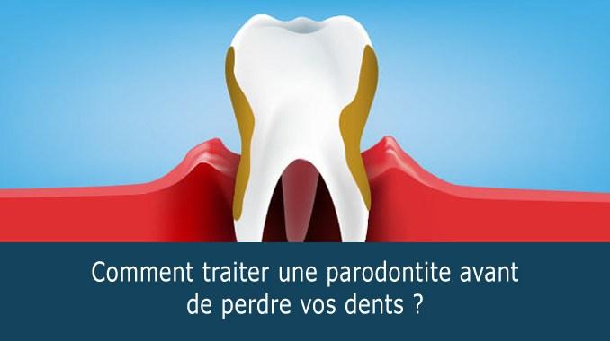 Comment traiter une parodontite ?