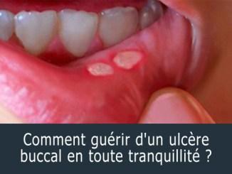 Comment guérir d'un ulcère buccal ?