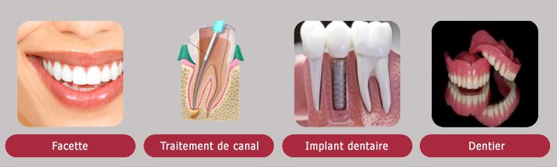 Traitements alternatifs aux couronnes dentaires