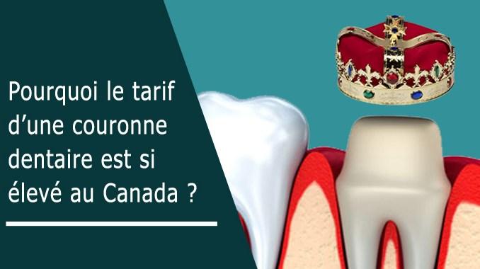 Pourquoi prix couronne dentaire