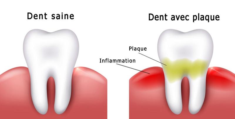 Plaque dentaire avant blanchiment