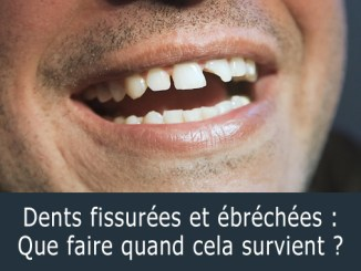 Dents fissurées