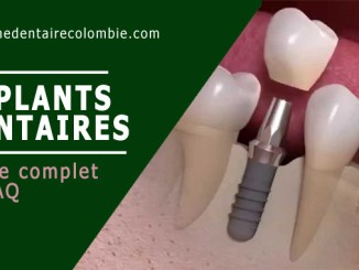 Implant dentaire - Guide complet et FAQ