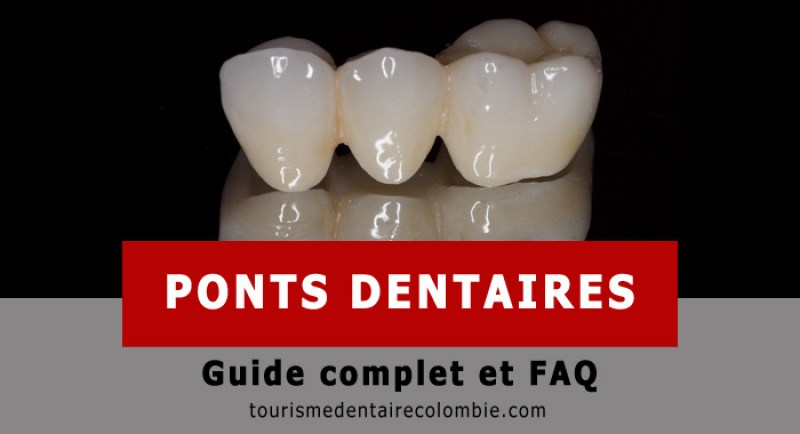Guide pont dentaire