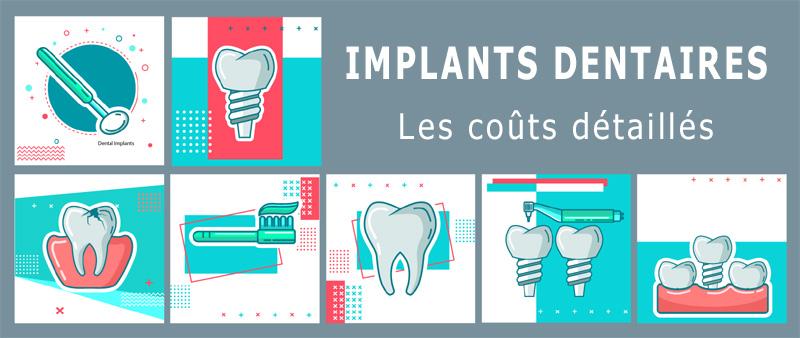 Devis implant dentaire