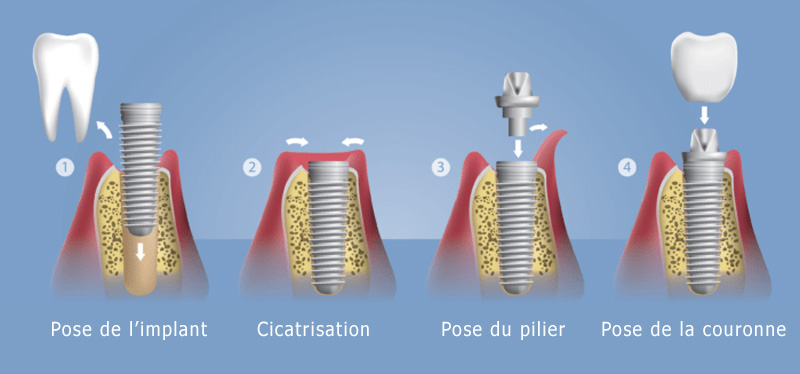 Pose d'un implant dentaire