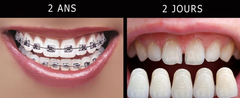 Orthodontie ou facettes dentaires
