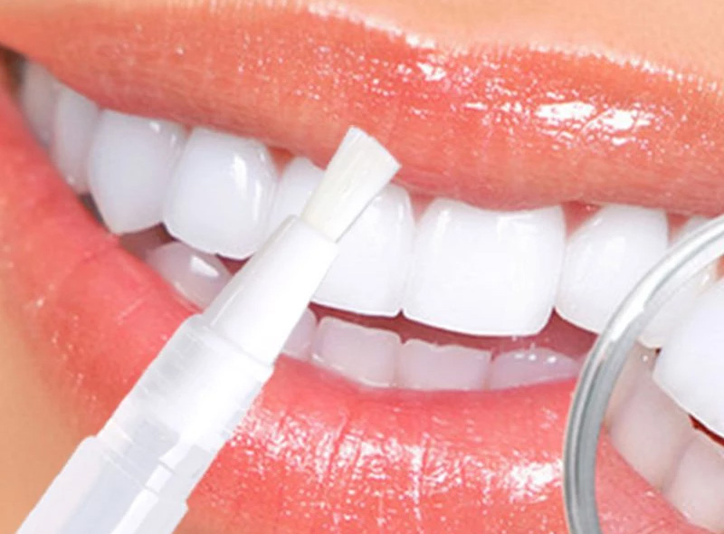 pinceau-dent