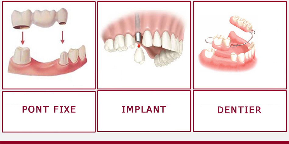 Pont, implant ou dentier