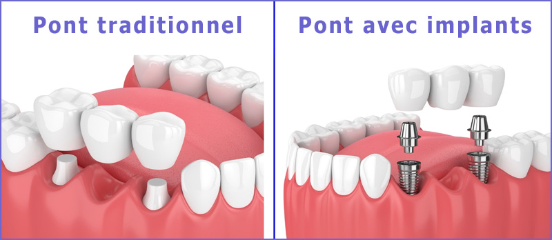 Pont avec implants dentaires