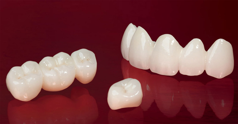 Type de matériau pour pont dentaire