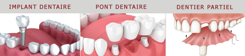 Moyens pour remplacer une dent