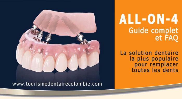 guide-allon4