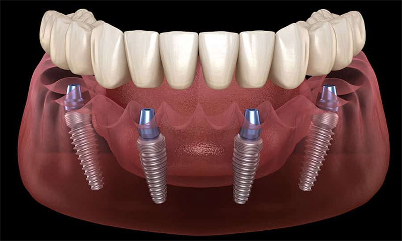 Prothèse fixe sur implants