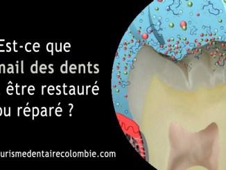Restaurer l'émail des dents