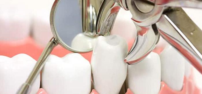 Procédure extraire une dent