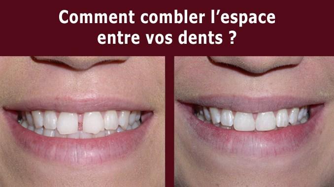 Combler espace entre vos dents