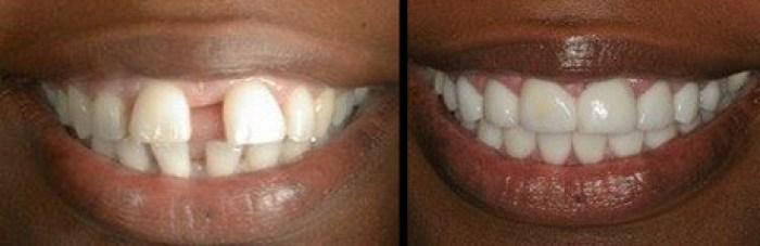 Couronnes dentaires pour espace entre les dents