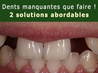 Dents manquantes que faire