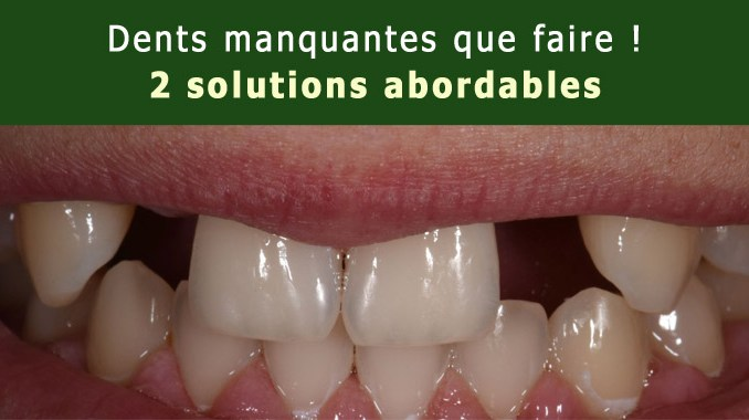 Dents manquantes que faire