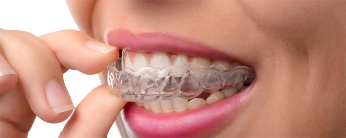 Envisalign pour espace dentaire