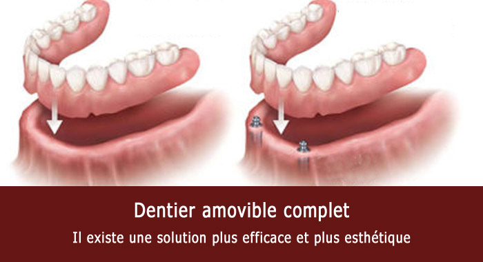 dentier-amovible-complet