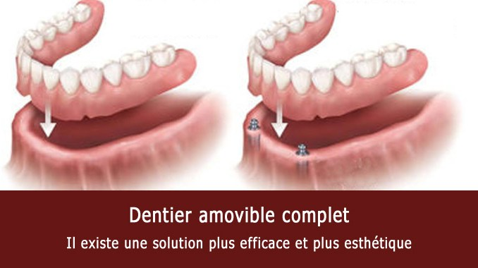 Dentier amovible complet