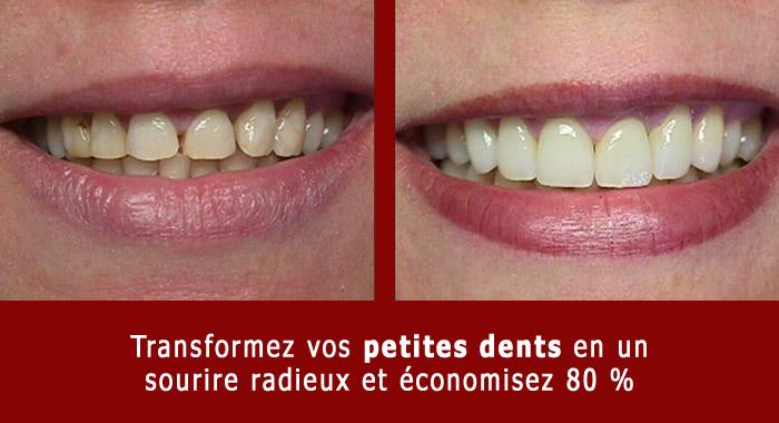 petites-dents