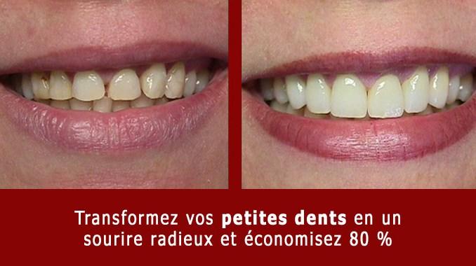Petites dents