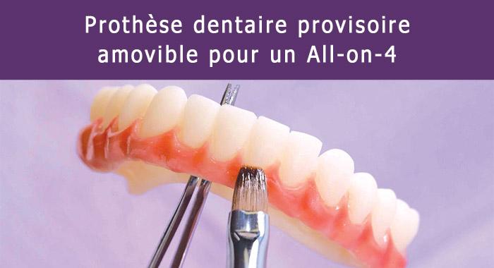 prothese-dentaire-provisoire
