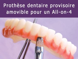 Prothèse dentaire provisoire amovible