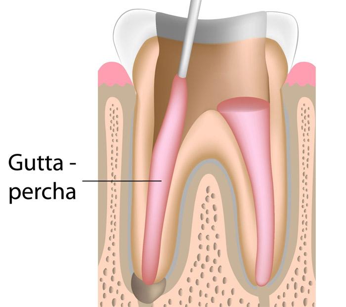 Remplir le canal dentaire