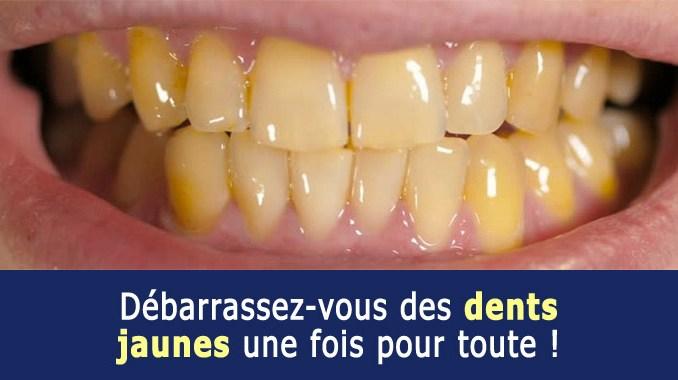 Dents jaunes que faire