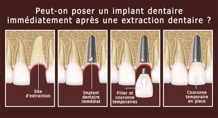 extraction-implant