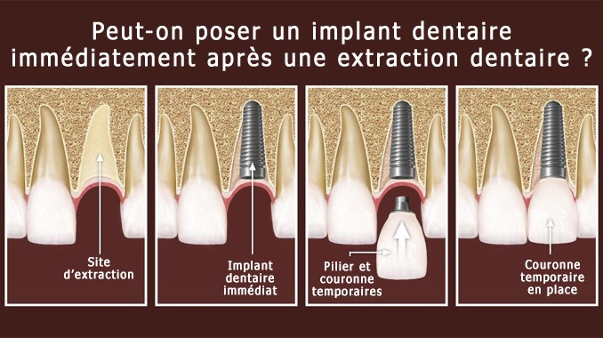Extraction et implant dentaire