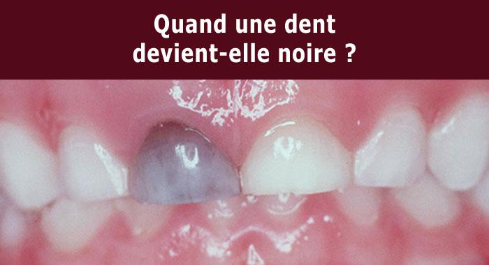 dent-noire
