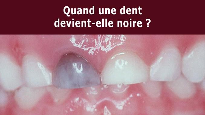 Quand une dent devient-elle noire ?