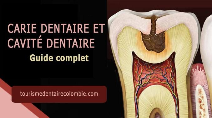 Carie dentaire et cavité dentaire : Guide complet