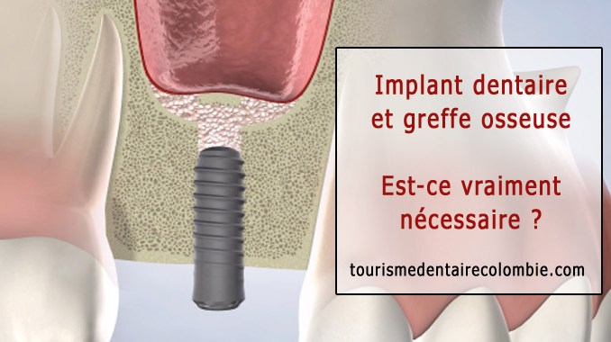 Implant dentaire et greffe osseuse