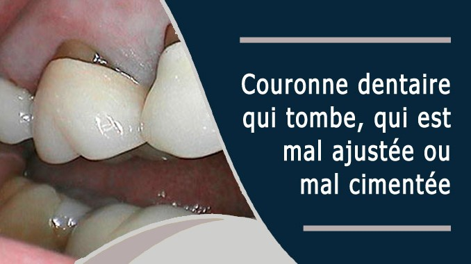 Couronne dentaire qui tombe