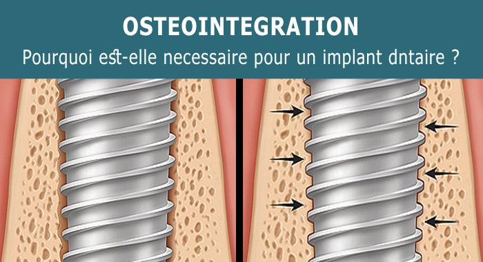Pourquoi l'ostéointégration