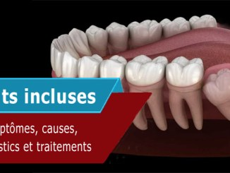 Dents incluses