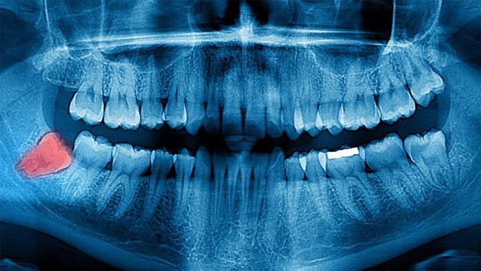 Rayon x dent incluse
