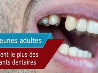 Les jeunes adultes profitent le plus des implants dentaires