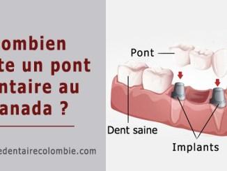 Combien coûte un pont dentaire au Canada