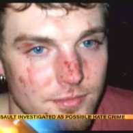 Gay Man Beaten by Gang of People at Ohio Bar Over His Sexuality