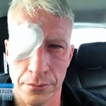 Anderson Cooper Went Blind for 36 Hours in Portugal: VIDEO