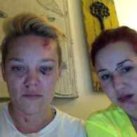 Lesbian Couple Alleges Hate Crime Following Assault In Long Beach
